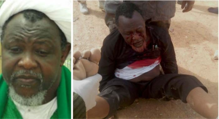 2015 Bullets Still Inside El-Zakzaky And Wife's Bodies – His Lawyer Reveals