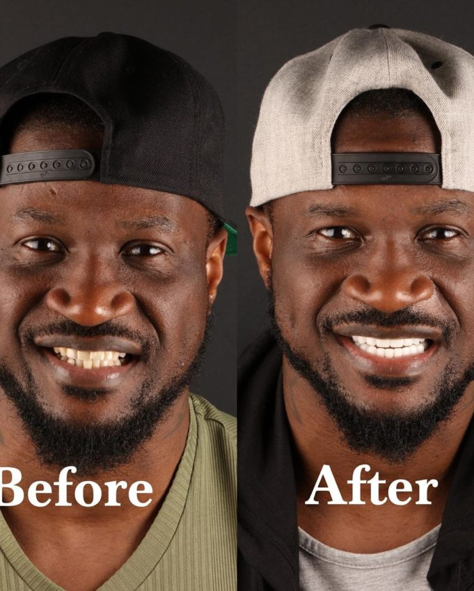 Peter Okoye Apologizes To Ladies He Kissed With His Brown Teeth (Video)