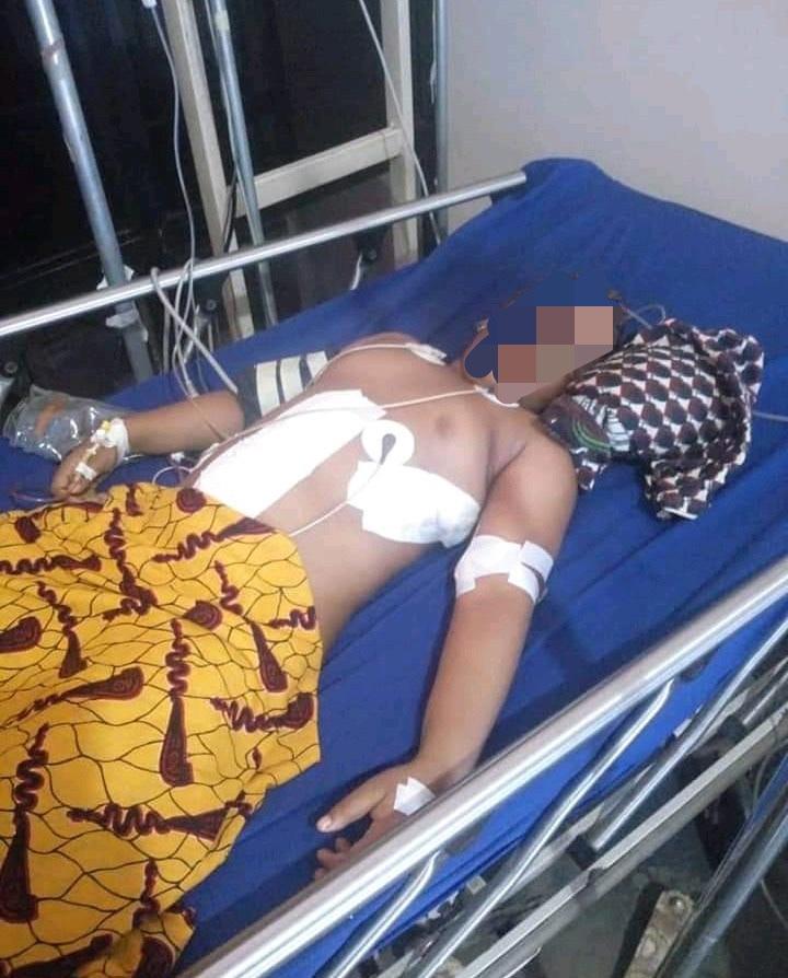 Fulani Herdsmen Shoots 6 Year Old Girl In Enugu State (Graphic Photo) 17