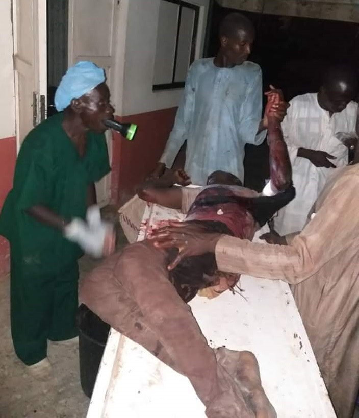 Heartbreaking Photo Of Doctor Operating An Injured Patient With Torch Light In Jigawa 16