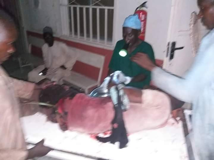 Heartbreaking Photo Of Doctor Operating An Injured Patient With Torch Light In Jigawa 19