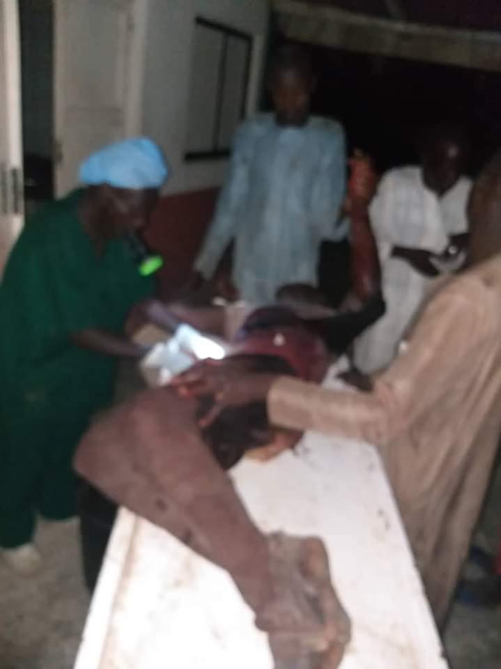 Heartbreaking Photo Of Doctor Operating An Injured Patient With Torch Light In Jigawa 18