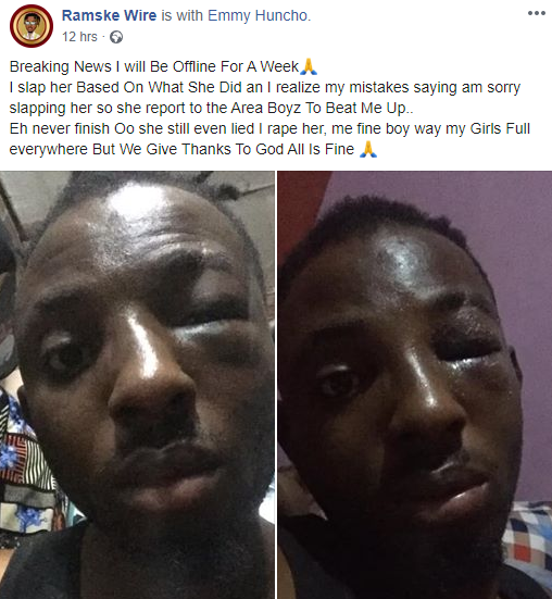 Young Man's Girlfriend Arranges Area Boys To Beat Him Up For Slapping Her (Photos)