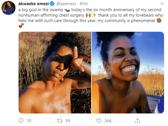 Nigerian Writer Goes Topless To Show Her Mastectomy Scars After Breast Removal Surgery