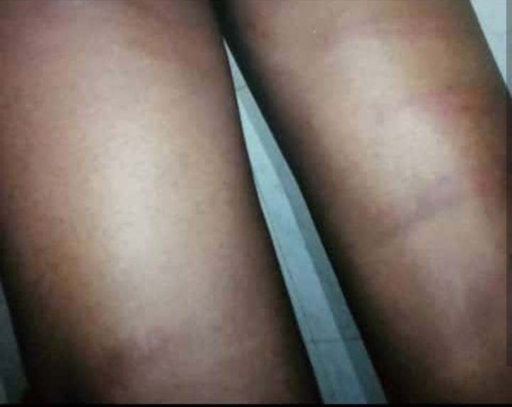 Secondary School Students Beaten Mercilessly For Saying They Are 'Marlians' (Photos)