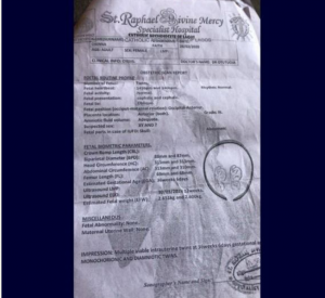 Woman Accuses St Raphael Hospital Ikorodu Of Stealing One Of Her New Born Twins 3