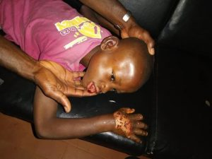 Woman allegedly batters her fiance's young son with log of wood in Anambra, dips his hand in hot water 8