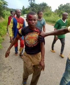 Man Kills His Cousin In Abia Over Mango 5