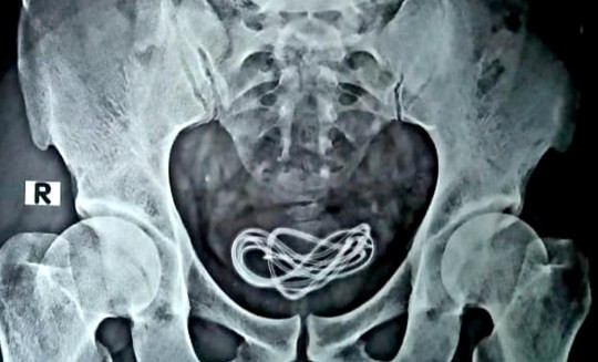 Phone Charger Removed From Man's Bladder (Photos)