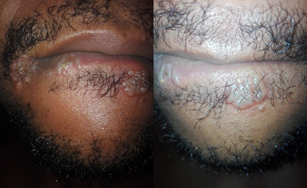 Nigerian Man Shares Photos Of Sores Growing Around His Mouth After Giving Head To A Woman
