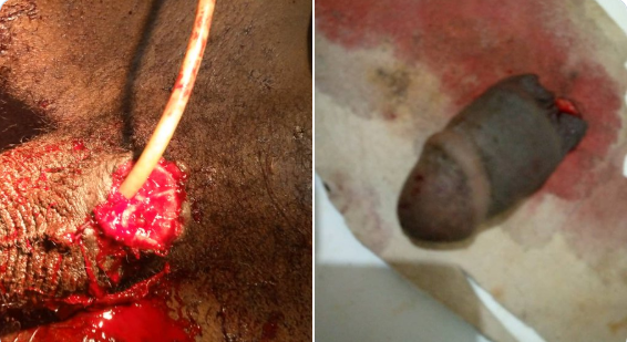 Pregnant Woman Cuts Off Her Husband Penis During Argument (Graphic Photos) 12