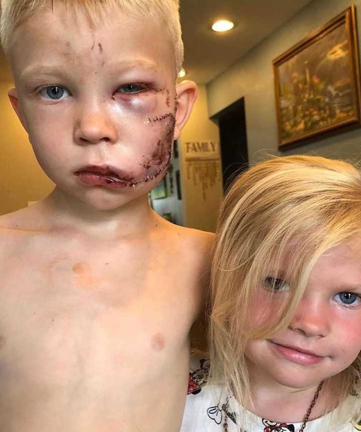 6-Year-Old Boy Who Fought A Dog To Protect His Sister, Hailed A HERO