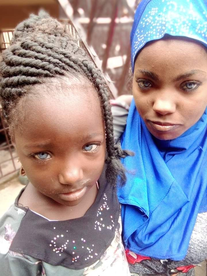 Man Allegedly Rejects His Daughter Over The Colour Of Her Eyes (Photos)
