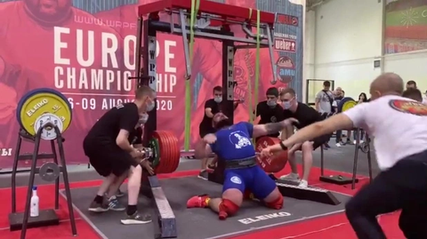 Powerlifter Fractures Both Knees While Trying To Squat 400kg (Photos)