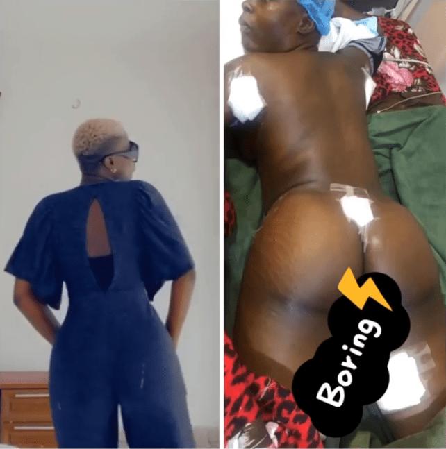 Exposed! BBNaija's Khloe Had Butt Enlargement Surgery (See Photos)
